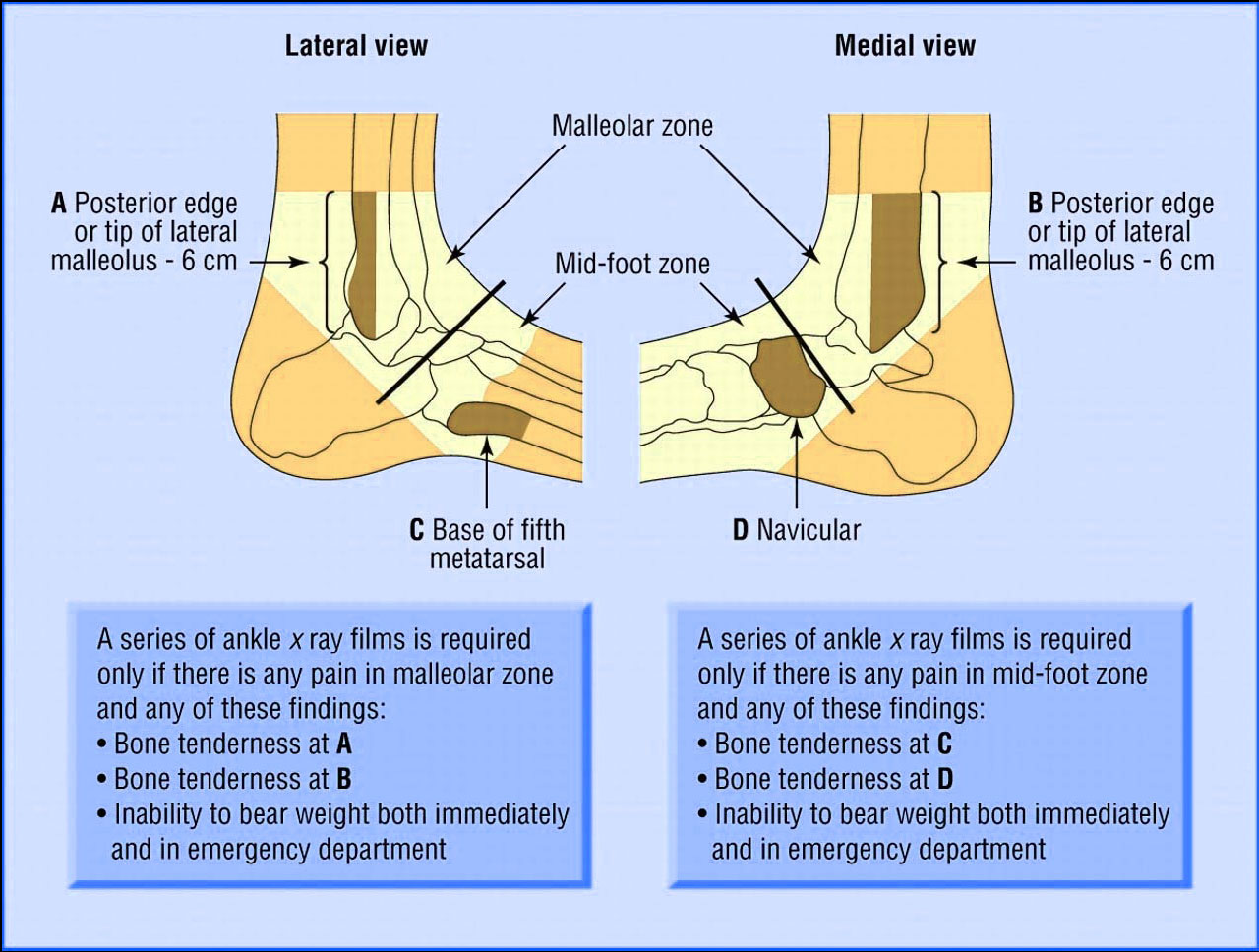 the ottawa ankle rules nursing essay The multicentre trial to introduce the ottawa ankle rules for  this can increase the risk for developing ankle sprains and strains  royal college of nursing.